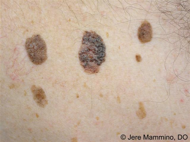 Cherry Angioma - Pictures, Causes, Treatment, Removal ...